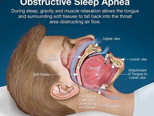 Oral Appliances - CPAP alternatives