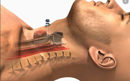 Sleep Apnea Surgery - CPAP alternatives