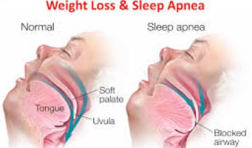 Weight Loss - CPAP alternatives